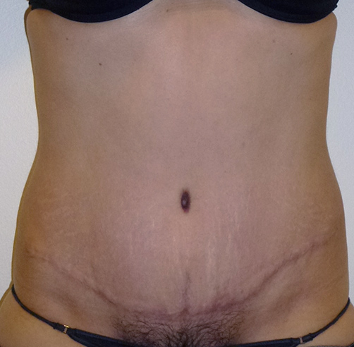 After-ABDOMINOPLASTIA