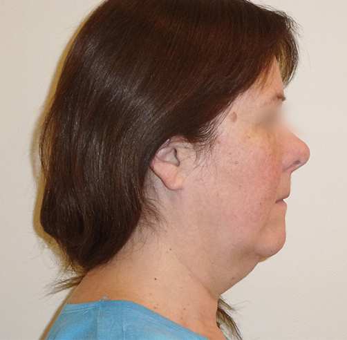 Before-Lifting cérvico-facial