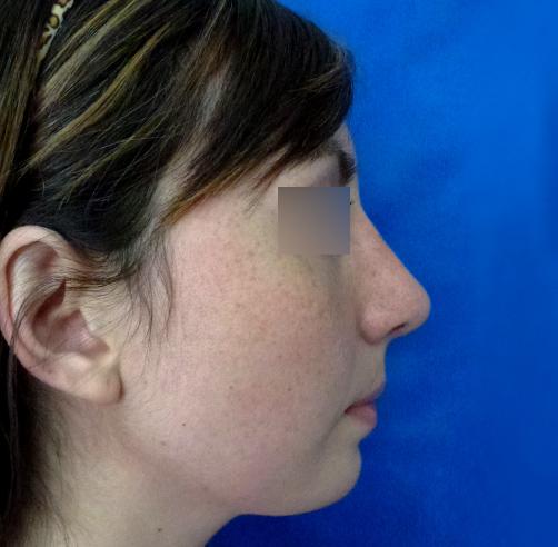 After-Rinoplastia y Mentoplastia