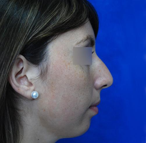 Before-Rinoplastia y Mentoplastia