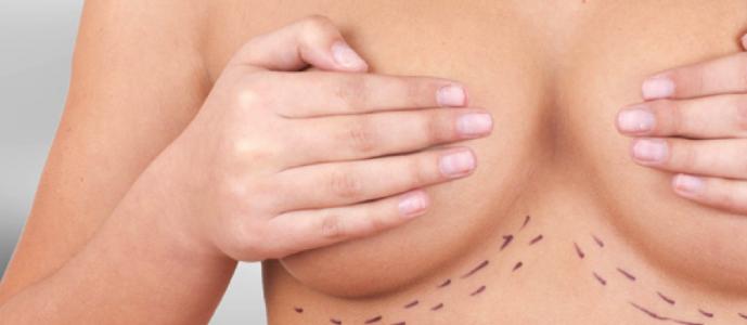 , Conoce más sobre la nueva generación de prótesis mamarias