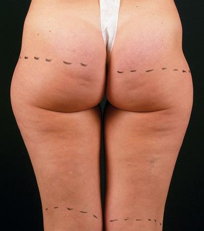 Before-Celulitis