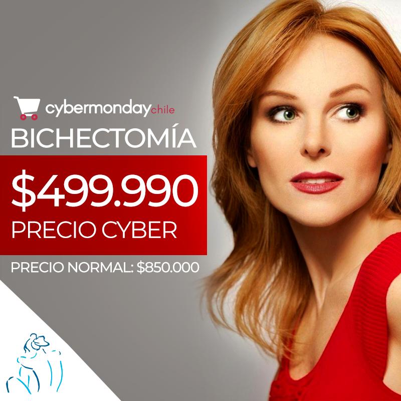 , Cybermonday 2019: Bichectomia