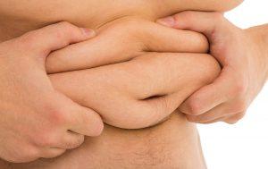 La Cirugía de Abdominoplastia es la solución a la guatita en delantal y consiste en retirar el exceso de piel, tejido adiposo y reparar la pared muscular.