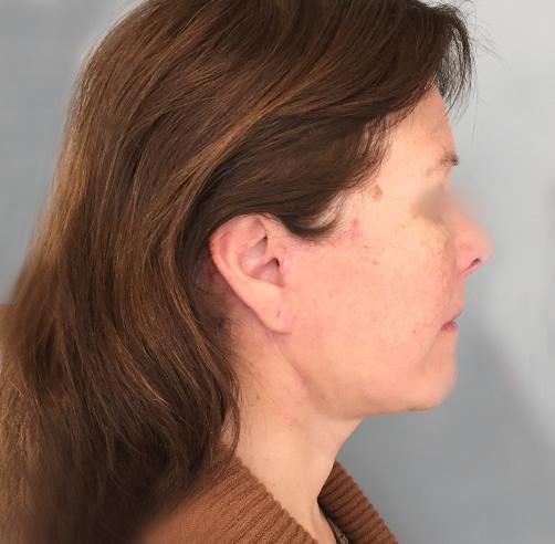 After-Lifting cérvico-facial