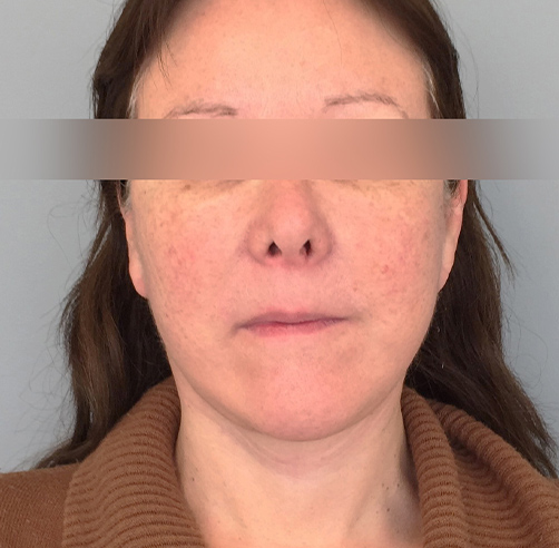 After-Lifting cérvico-facial