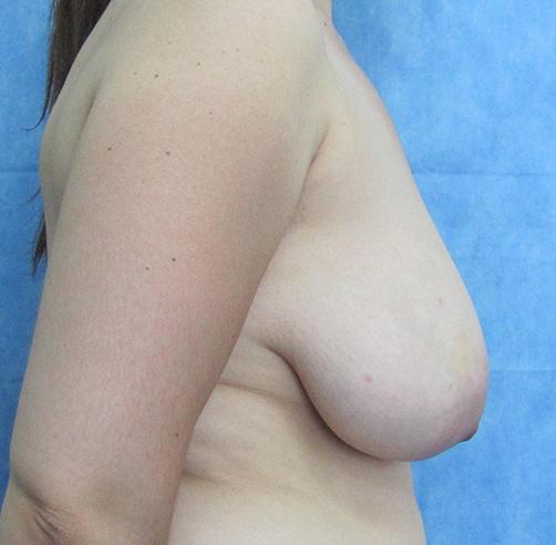 Before-Reducción Mamaria