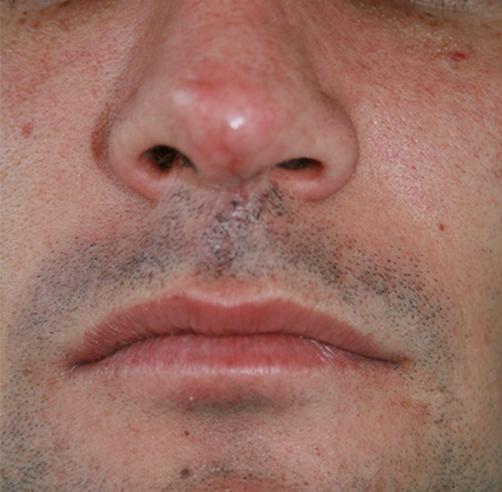 Trauma nasal, Dr. Esteban Torres