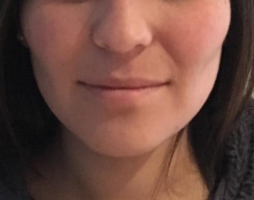 Adelgazamiento facial, bichectomía y Papada, Dr. Esteban Torres
