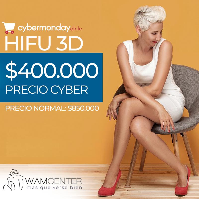 Cybermonday 2019: Hifu 3D, Dr. Esteban Torres