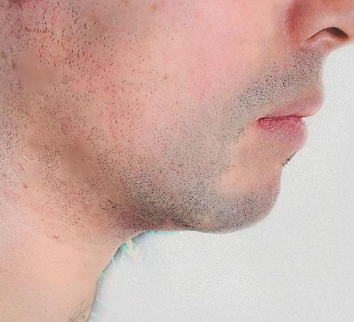 Lipoaspiración de papada, Dr. Esteban Torres